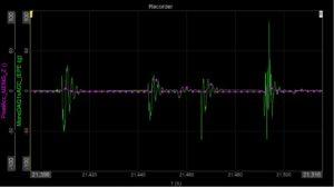 mems vs iepe acceleration vibration shock measurement